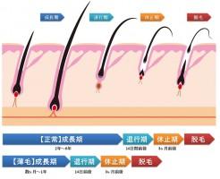 健康毛と男性型脱毛症のヘアサイクル比較図