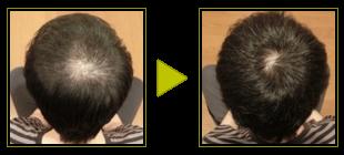 1日目と210日目の薄毛治療の効果