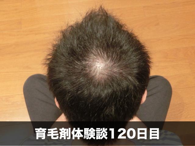 育毛剤薄毛改善記録120日目