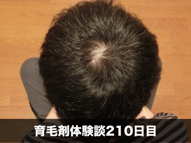 育毛剤薄毛改善記録210日目