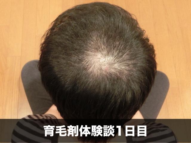 育毛剤薄毛改善記録30日目