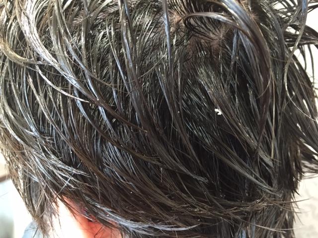 頭皮からフケが出て髪に付く