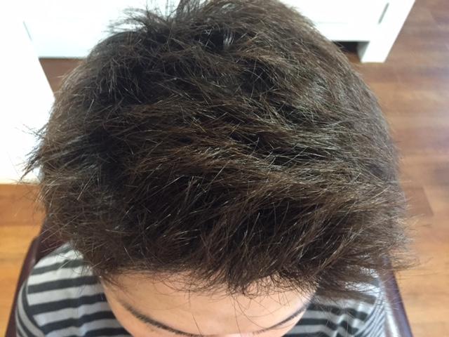 育毛治療後のヘアスタイル